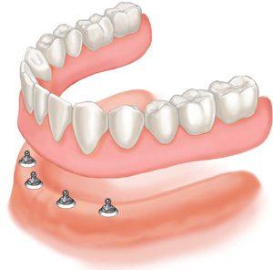 Ball and Socket Dental Implants