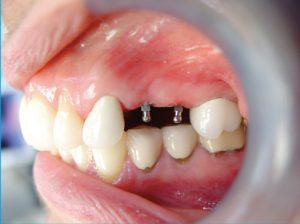 maryland-mini-implants-2